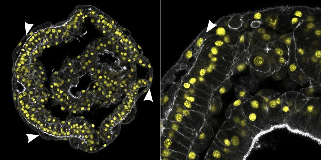 Larva Schmidt de Lineus ruber. As pontas de setas indicam a camada de células que seria vestígio da larva pilídio.